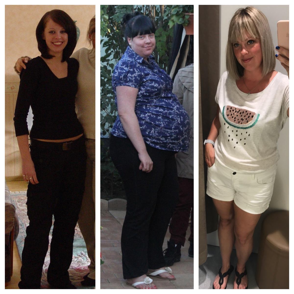 übergewicht nach magersucht